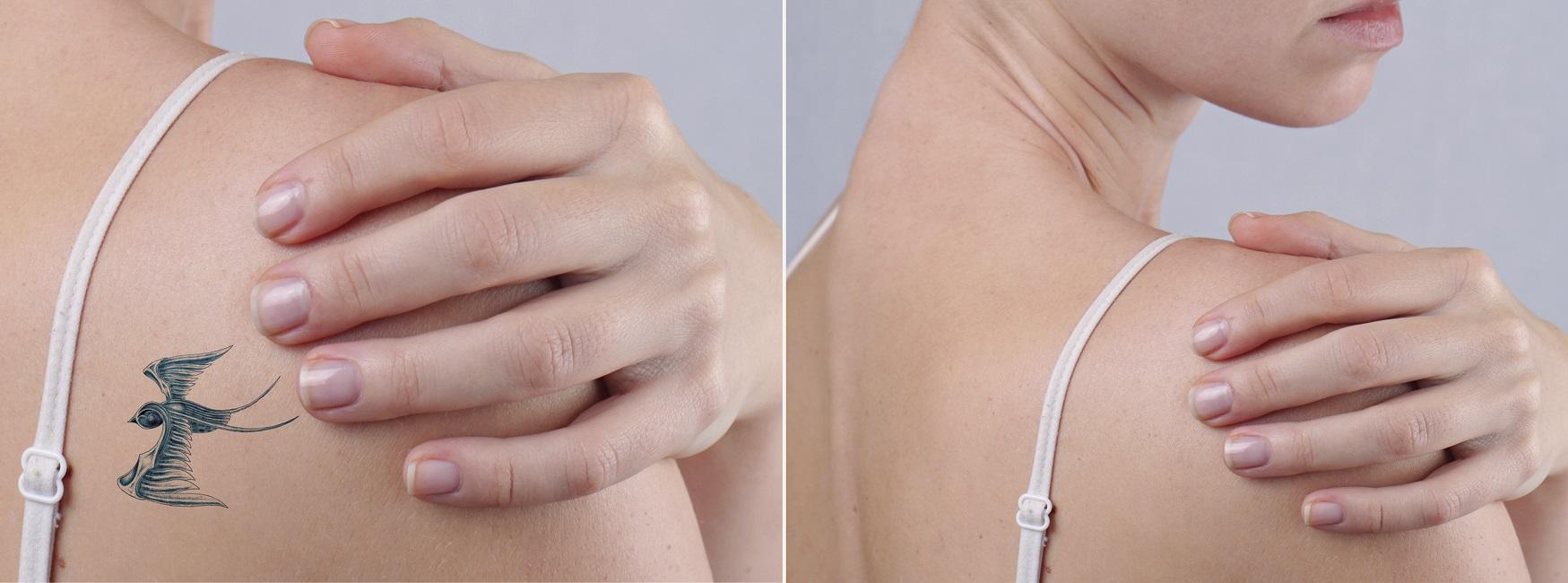 Tattoo laser verwijderen behandeling nederland